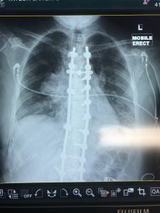 Scoliosis X ray showing a thymoma present